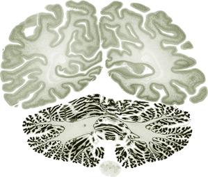 Brainsx299